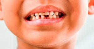 cuidado de tus dientes